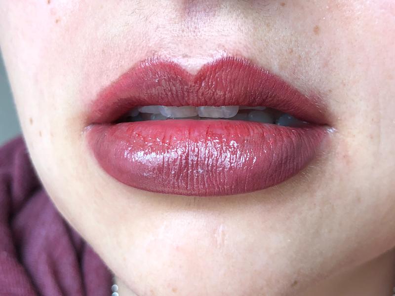 fresh lip enhancement