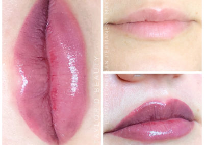 Lip Enhancement