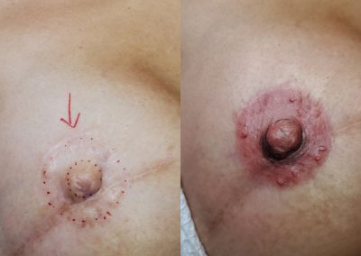 Taylor'd Beauty Areola Cosmetic Tattoo